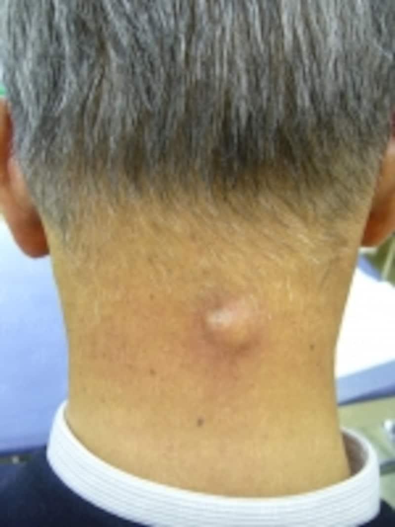 首のうしろの粉瘤