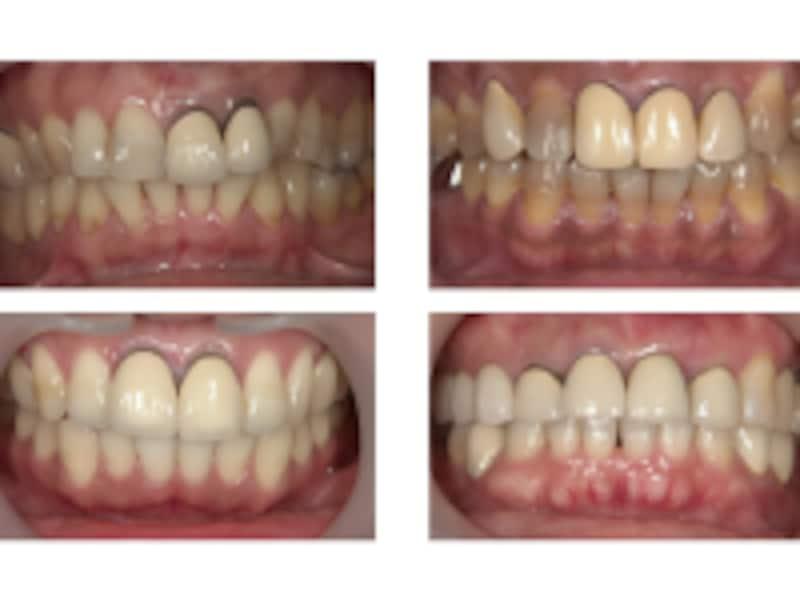 歯と歯ぐきのすき間が黒くなるブラックマージン