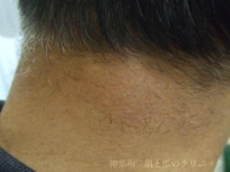 頸部(けいぶ)脂肪腫