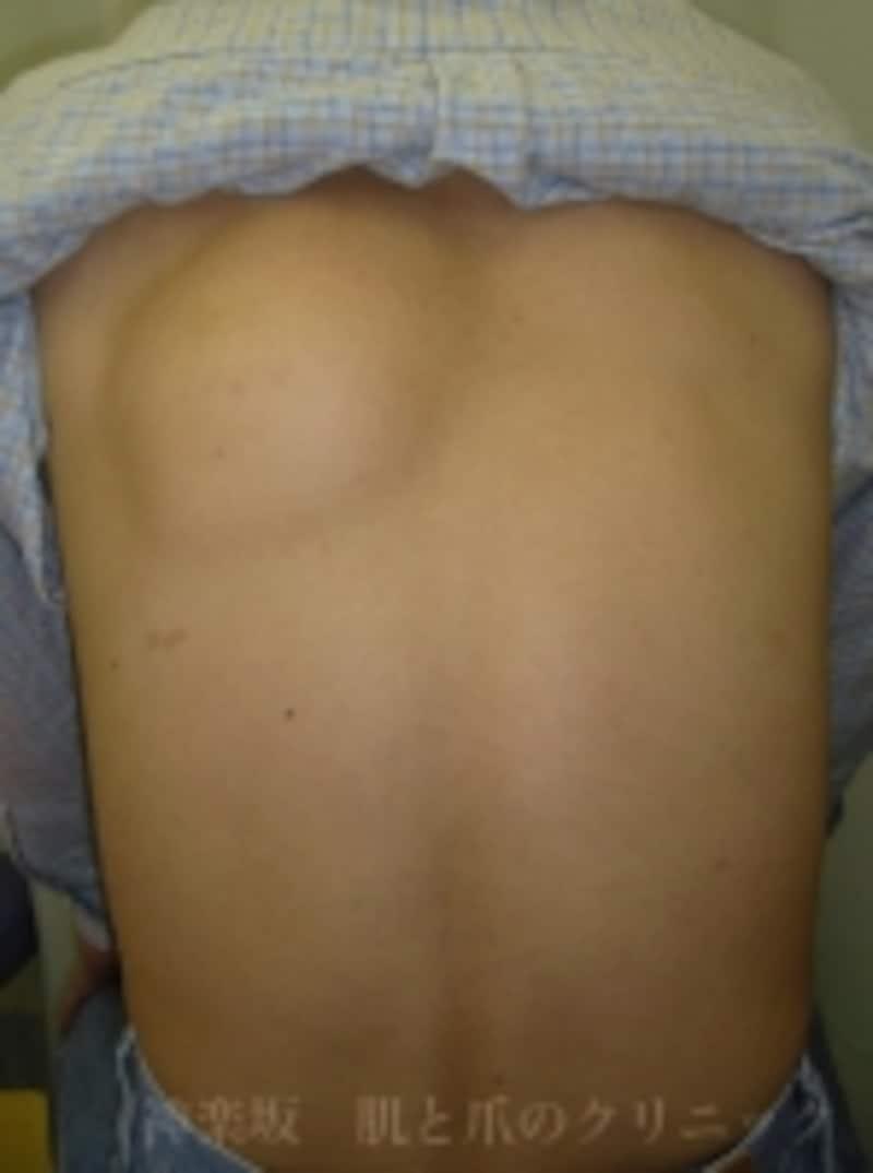 背中(肩甲部)の脂肪腫