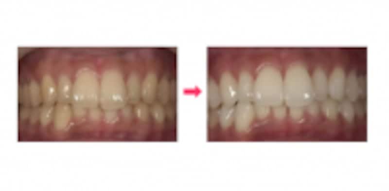 ホワイトニング治療イメージ