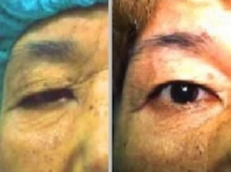 眼瞼下垂の手術画像