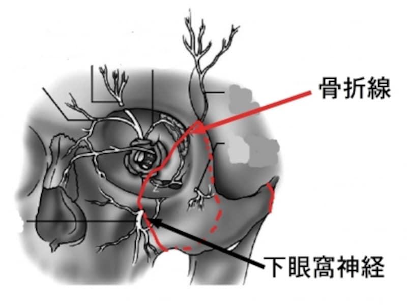 下眼窩神経