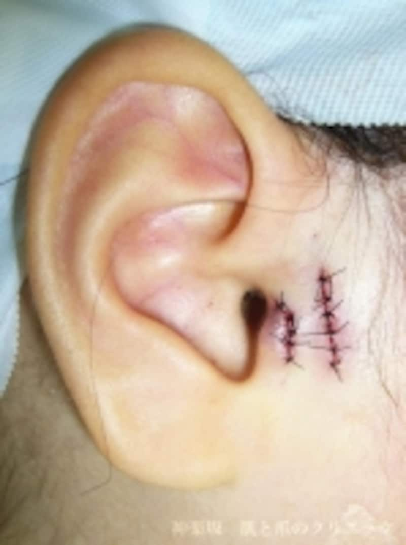 手術終了時undefined2カ所の副耳を切除した