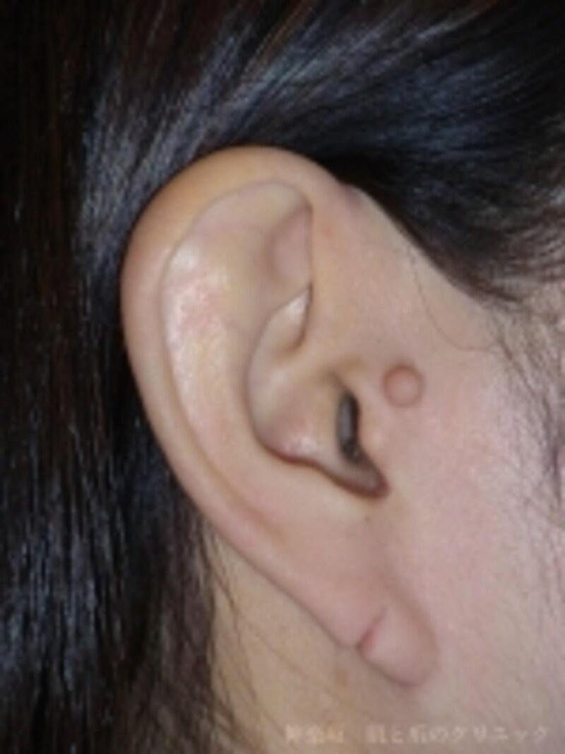 手術前undefined大人の副耳