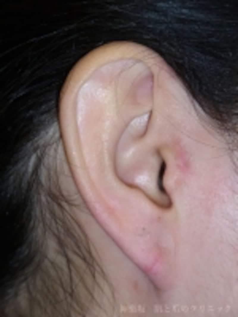 術後1ヶ月undefined大人の副耳