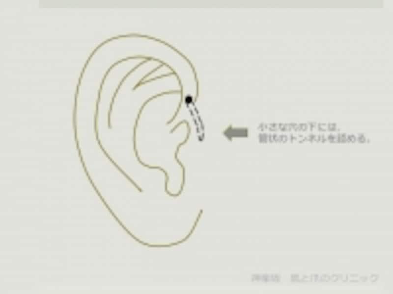 耳瘻孔undefined図説