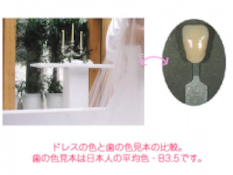 ドレスと歯の色B3.5の色比較