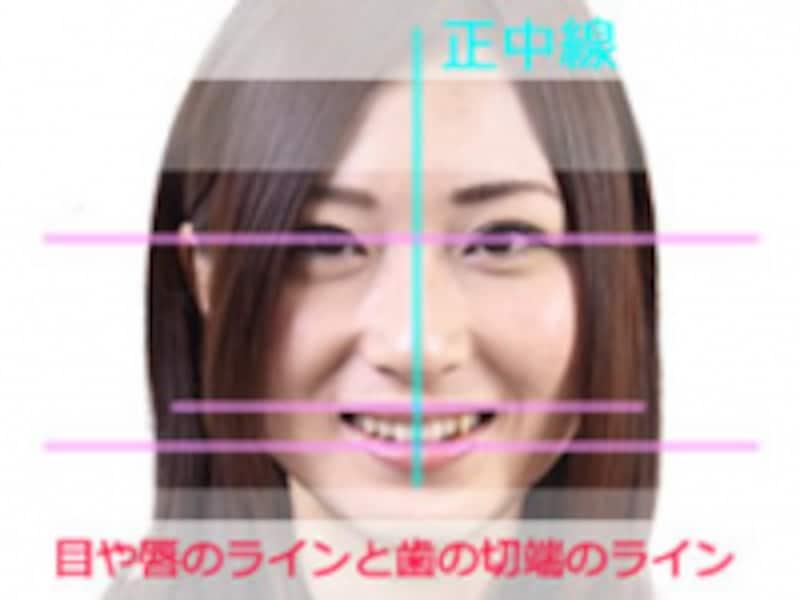 歯のラインと顔のラインを合わせるイメージで