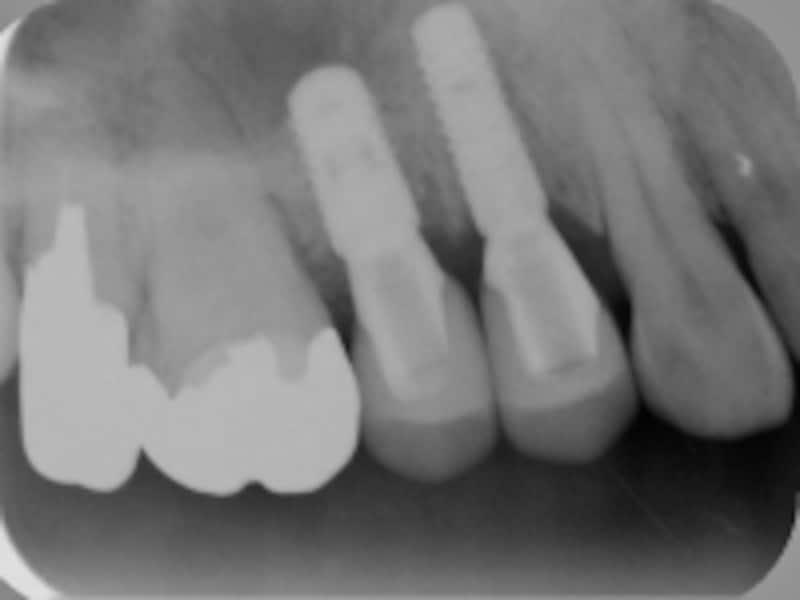 歯槽骨とインプラント