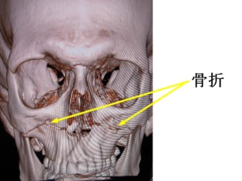 3DCT画像。