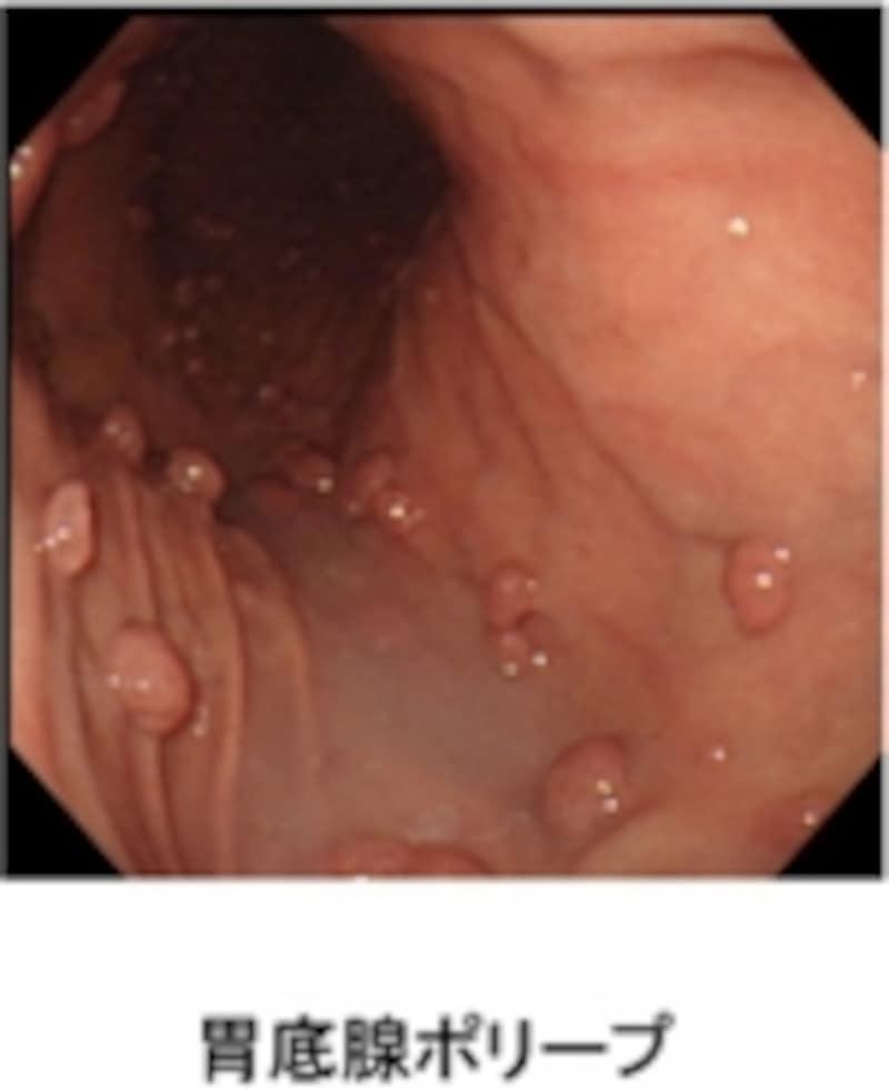 胃底腺ポリープ