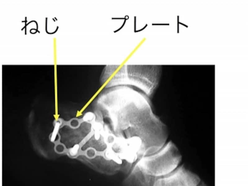 踵骨骨折の症状・診断・治療 [骨...