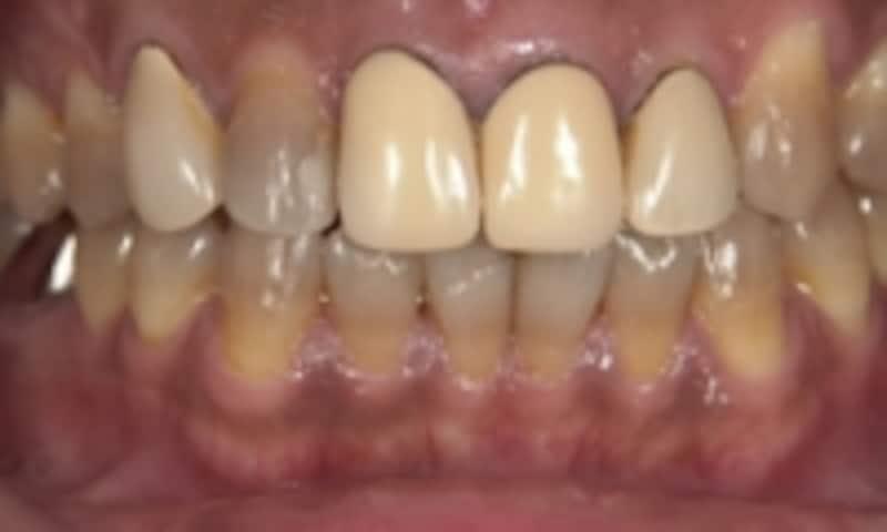 歯ぐきの根元から黒ずむ「ブラックマージン」