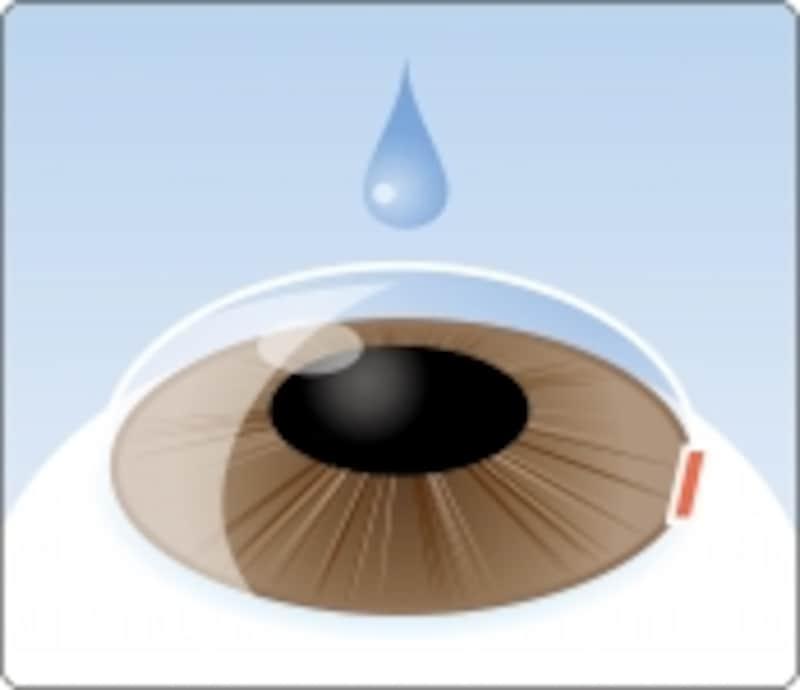 1.点眼麻酔をして角膜を3mm切開します。