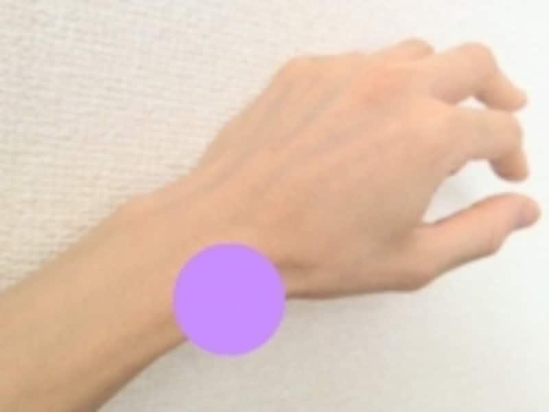 手首の親指側が痛んだり腫れが生じたりします