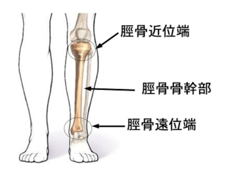 脛骨近位端骨折