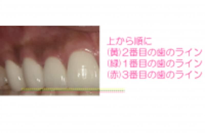 歯の長さや角度がポイント