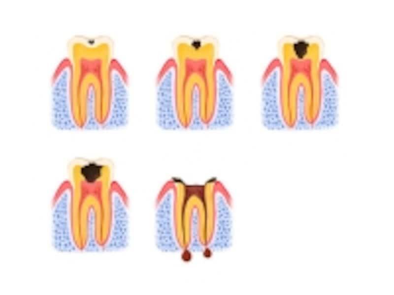 根先性歯周炎