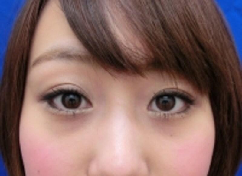 undefined目の下の色素沈着の症例です。赤クマは手術にて治療しました