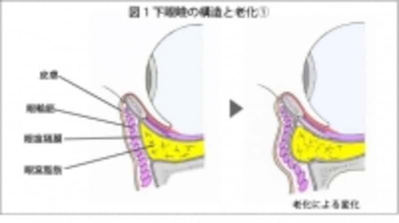 下瞼の構造です。黄色の部分が眼窩脂肪になります