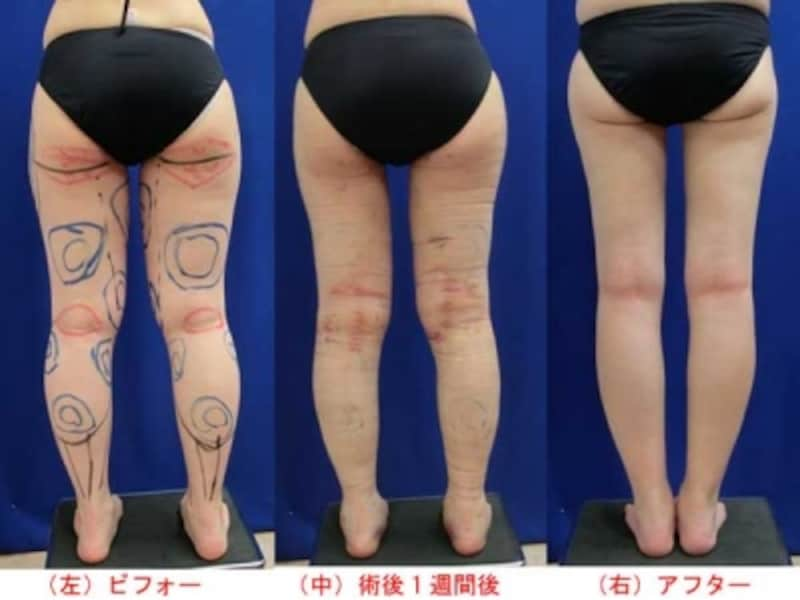 下半身脂肪吸引手術のビフォーアフター