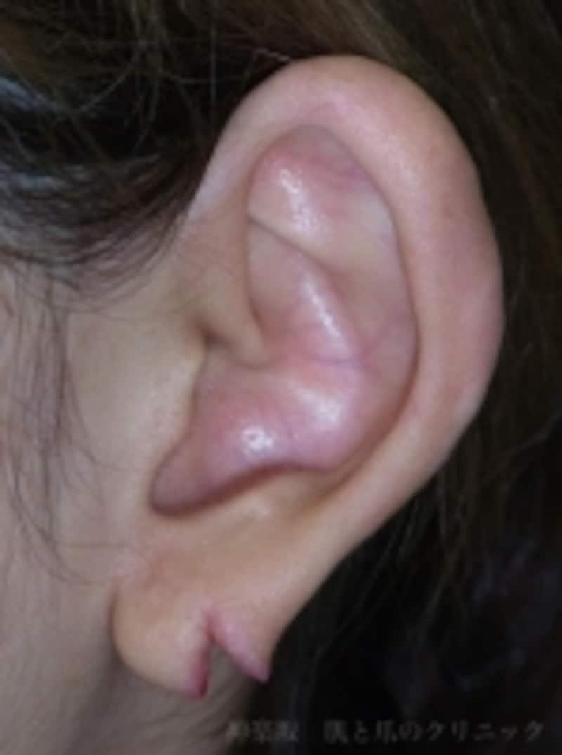 ピアスによる後天性耳垂裂