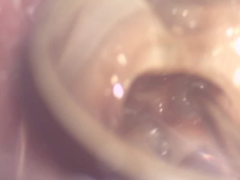 マイクロスコープで排膿状態をチェック。