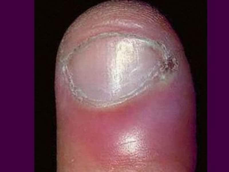 急性期爪周囲炎
