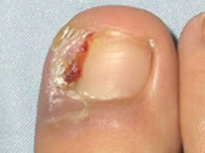 主な爪の病気一覧 症例画像 皮膚 爪 髪の病気 All About