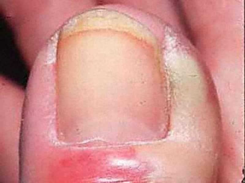 慢性期爪周囲炎