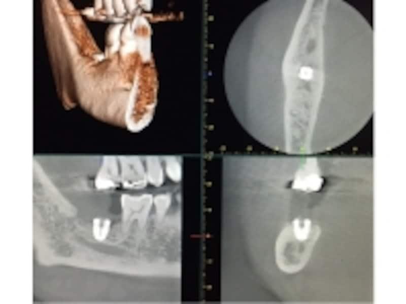 ショートインプラント埋入後CT画像