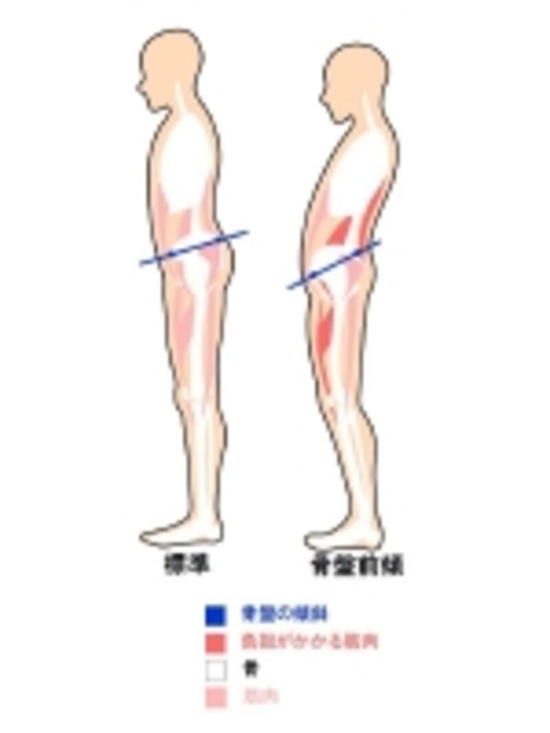 骨盤の傾斜