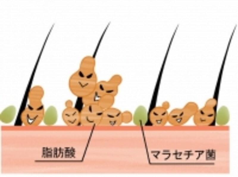マラセチア菌の異常繁殖は頭皮トラブルの引き金に