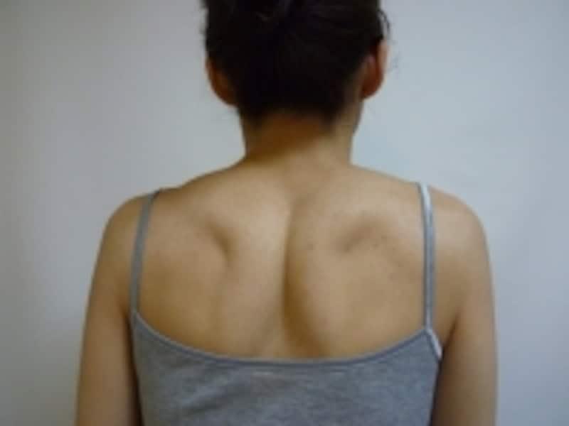 首を左右に動かし動きをチェックundefined肩をすくめ力を抜き、肩、肩甲骨のコリをチェック