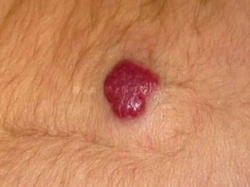 血管腫(乳児血管腫)