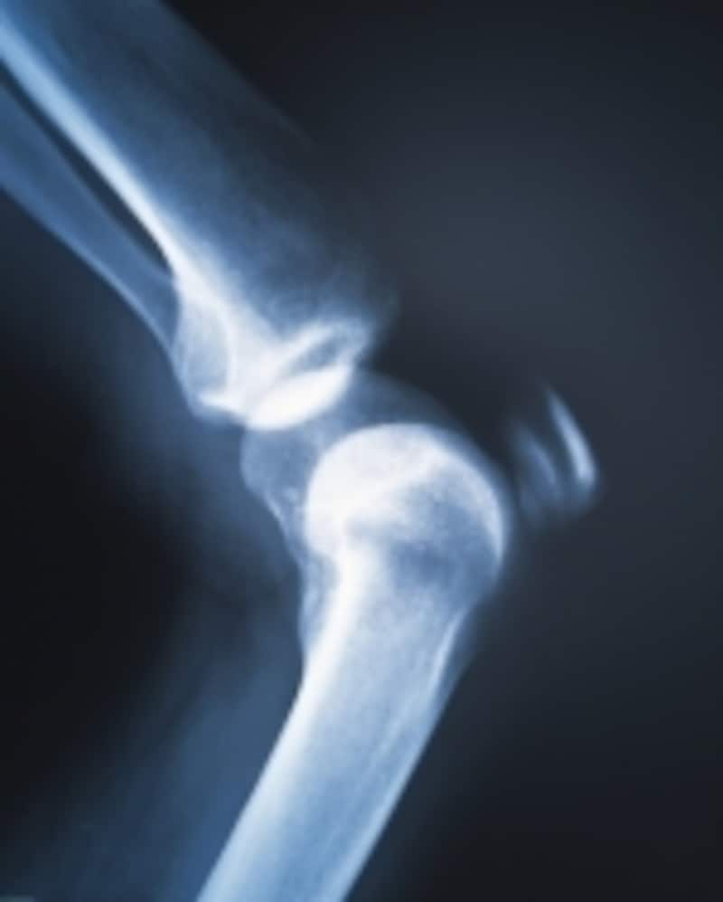 骨粗しょう症は、「治療をする」よりも「予防をする」ことが重要です