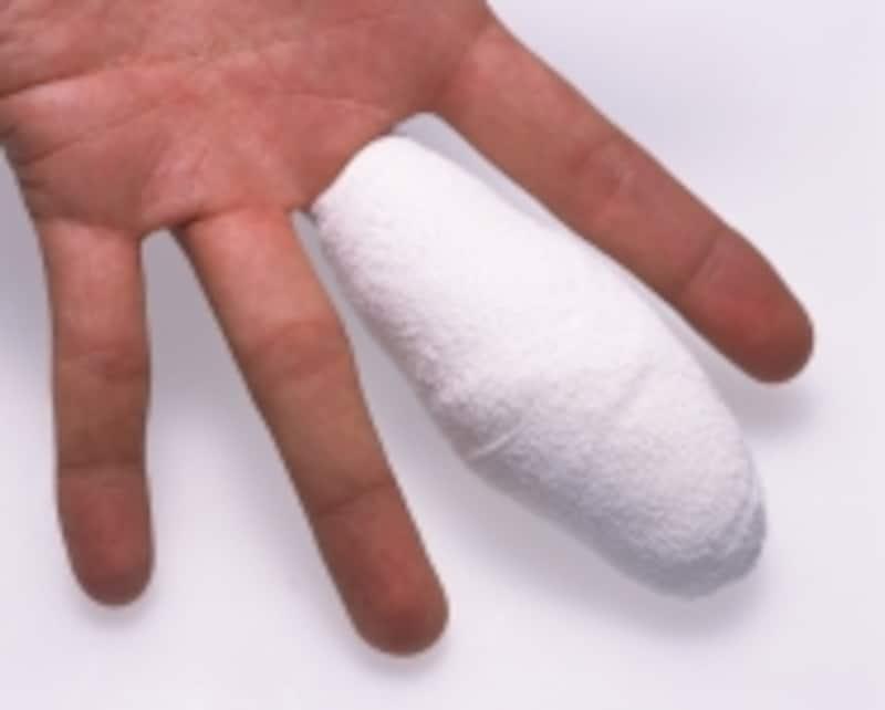 上肢部の中でも手、手指部の怪我が多い