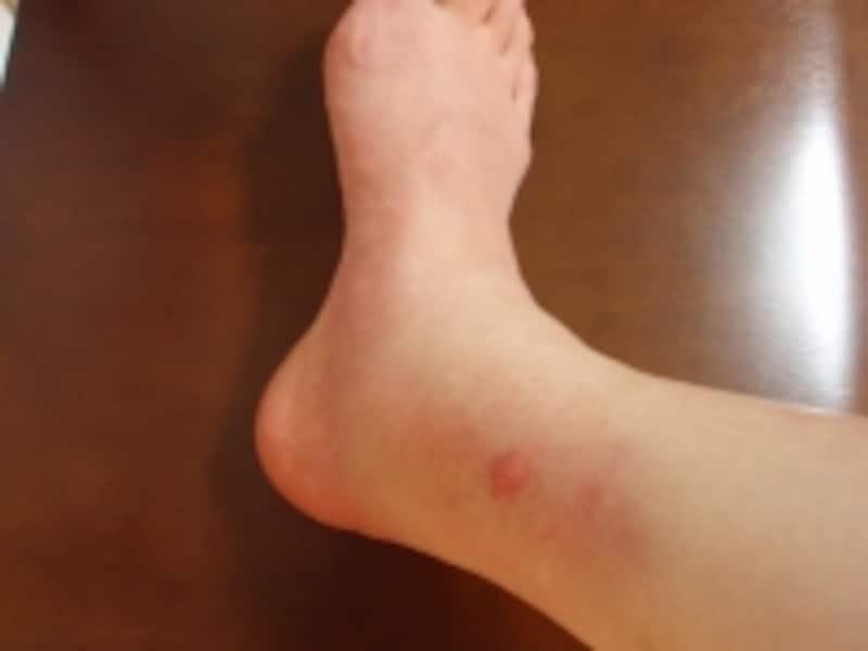 ブヨに刺されて腫れた足首