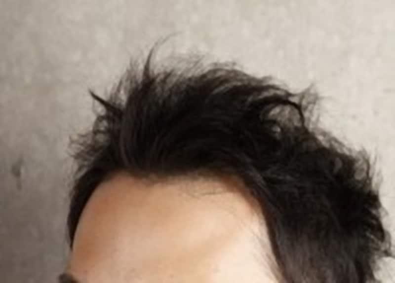 薄毛は突然くるのではなく、徐々にやってくる。早く気づいて正しい対処を!