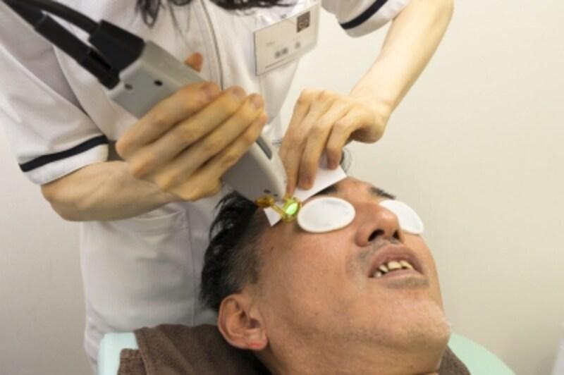 眉毛のレーザー照射。