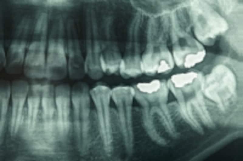 むし歯のレントゲン