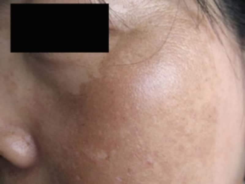 肝斑の症例画像