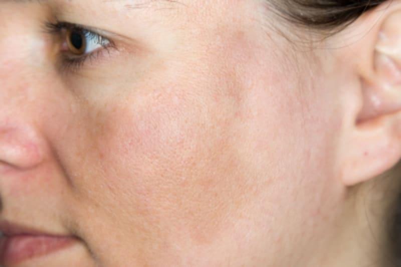 肝斑治療の飲み薬「トランサミン(トラネキサム酸)」のシミ消し効果
