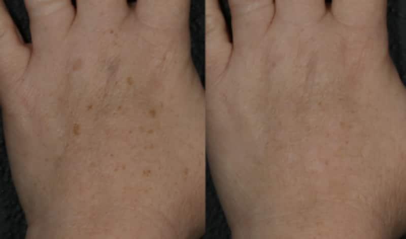左が施術前、右が施術後。手の甲のシミが消えるとこんなに印象が変わる!