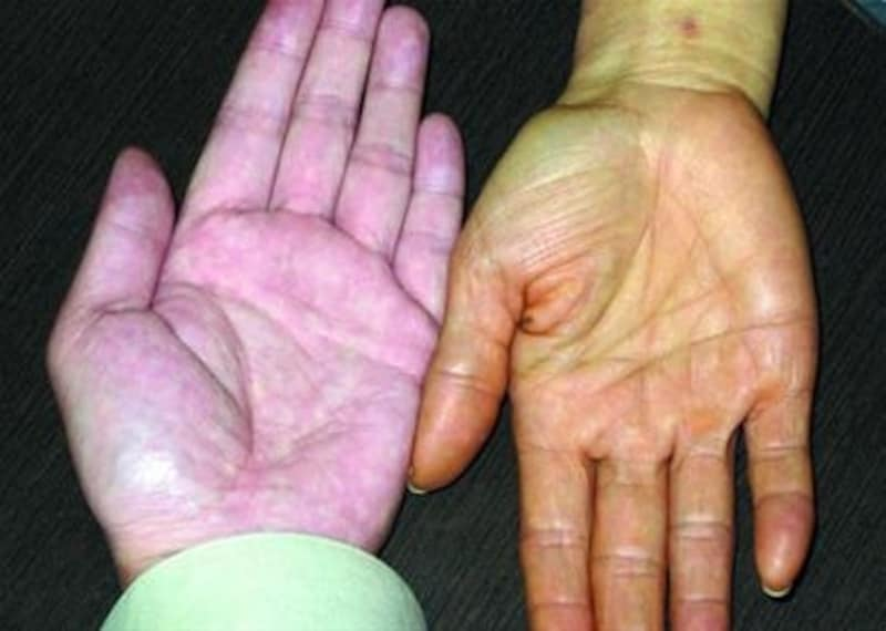 乾皮症の手