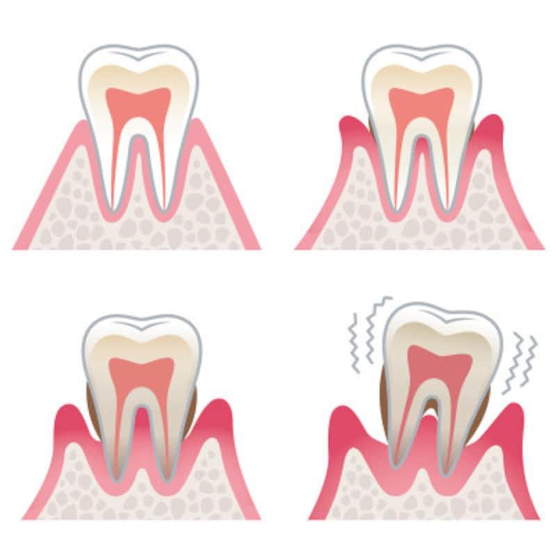 歯周病では骨が溶け、歯が抜けてしまう