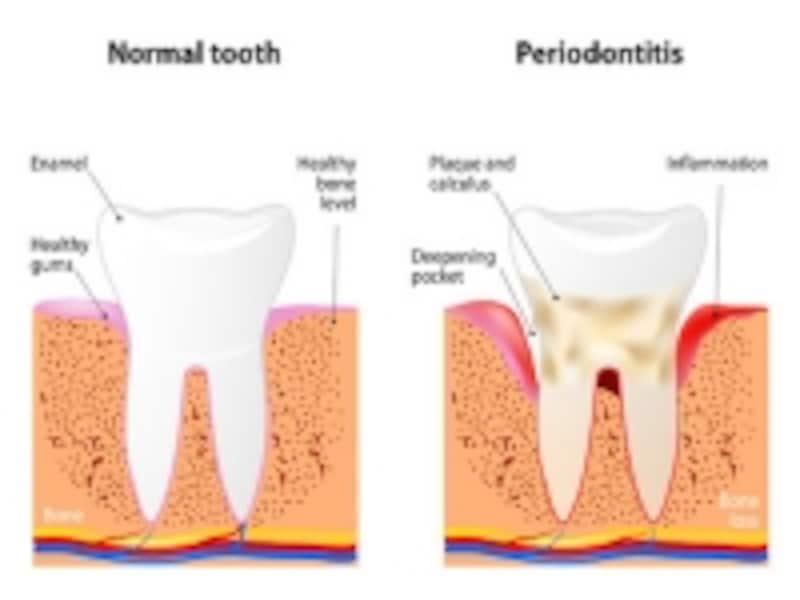 歯周病の骨