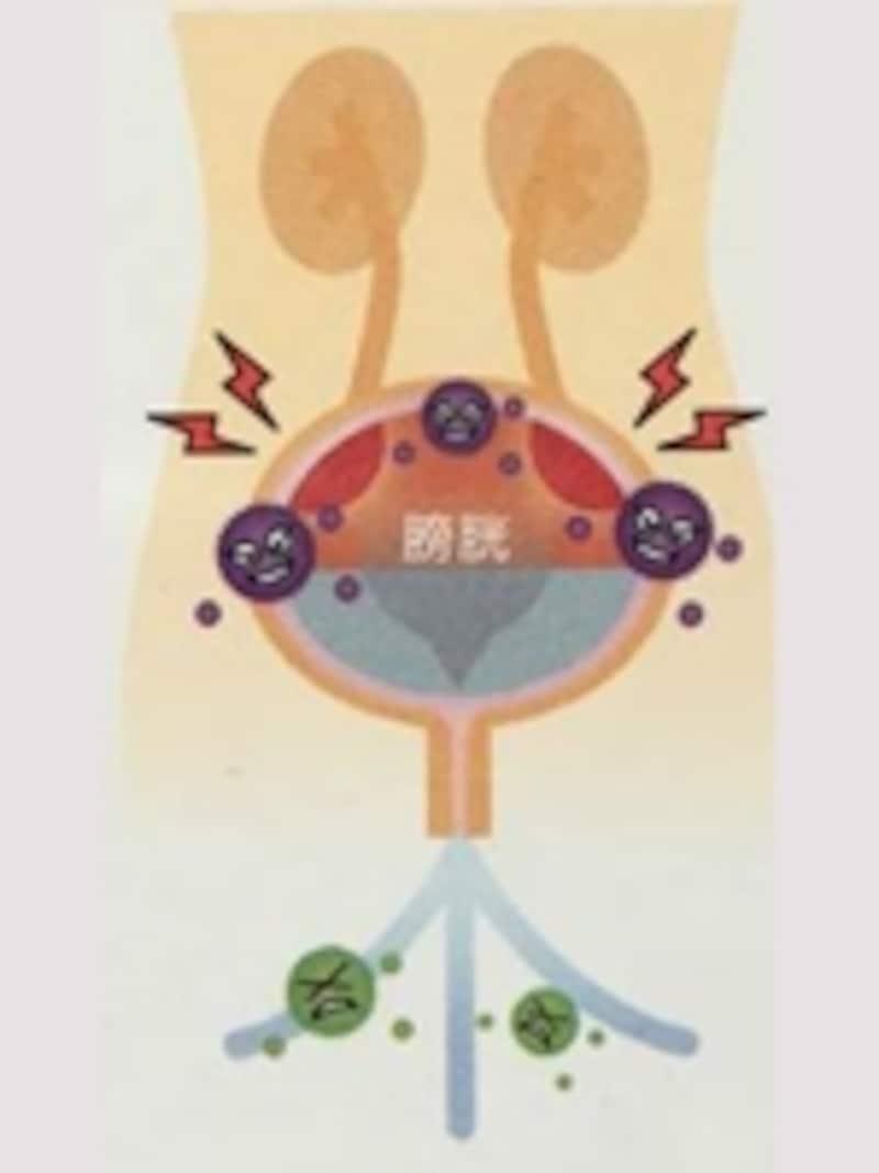 膀胱の内部で菌が増殖して炎症を起こすのが膀胱炎。菌を尿で洗い流すことが膀胱炎の治療や予防には効果的