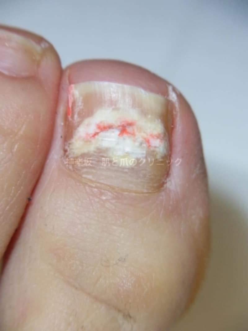 爪白癬undefined治療前